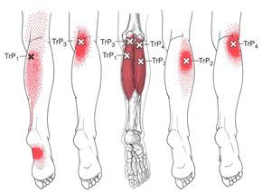 calf gastrocnemius trigger points muscle cramp relief